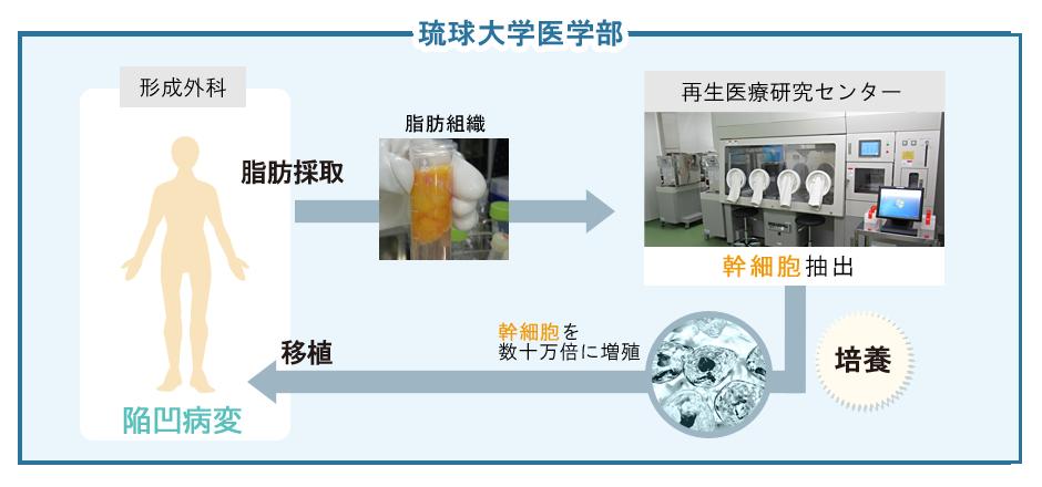 顔面陥凹性病変の治療のイメージ図